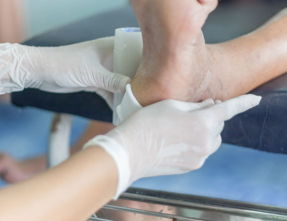 Checking the ankle with infection for confirming Diabetic Foot Ulcers in hyderabad