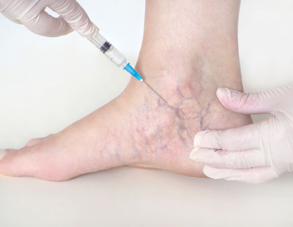 Physical examination for Varicose Veins in delhi