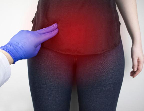 Doctor feeling the pelvic area for examining Uterine Fibroid in chennai